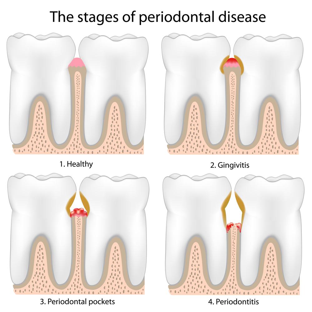 Periodontitis: treatment, causes, symptoms